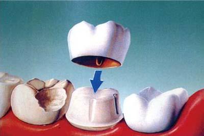口腔工艺技术-牙模型